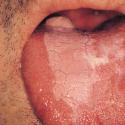Келоидные рубцы: причины формирования, методы лечения