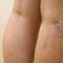 Эстетическая ангиология, коррекция сосудистых дефектов кожи