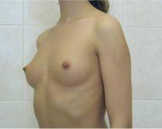 Как увеличить грудь массаж тренировки в домашних условиях