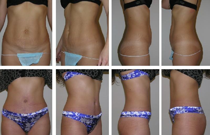 как похудеть за 16 недель