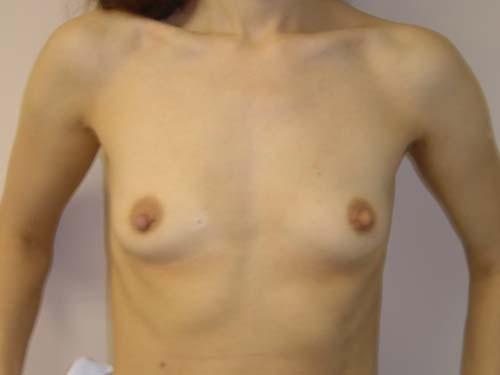 Увеличение груди - пластический хирург Сергей Левин.