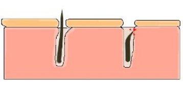 воспаление от вросшего волоса в зоне бикини