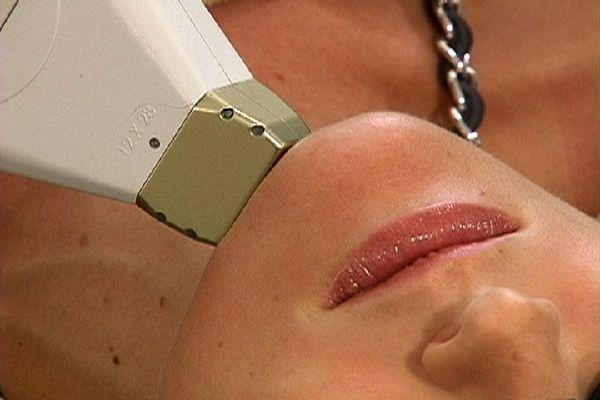 эпиляция волос на лице ниткой
