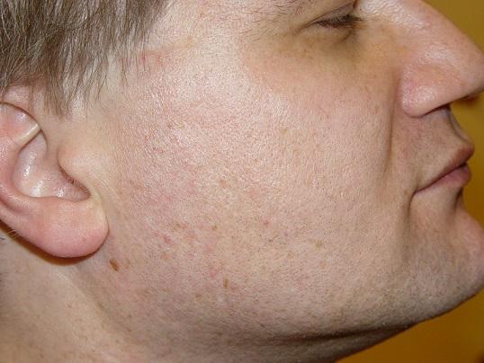 лечение проблемной кожи дома