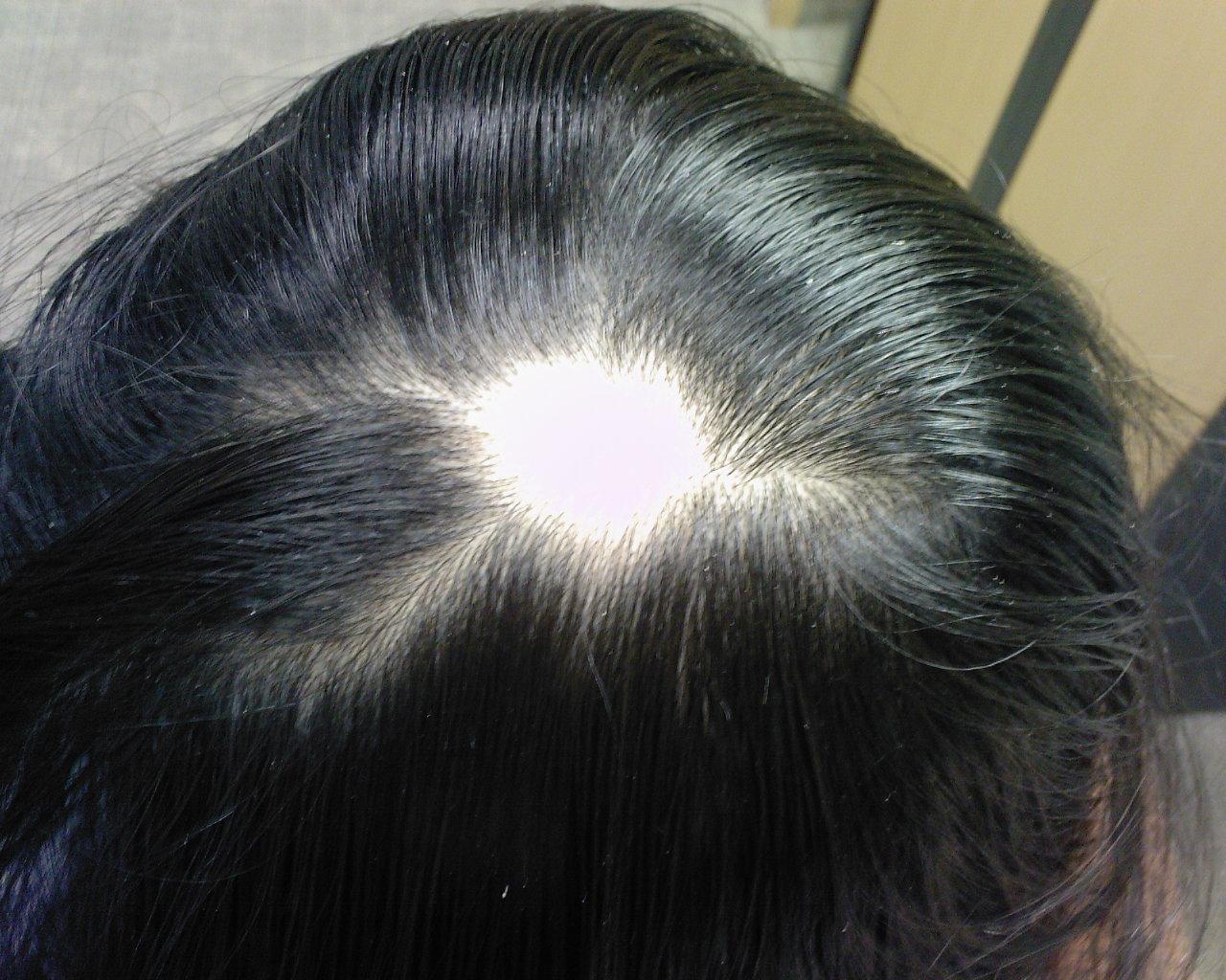 Фото лобок со светлыми волосами 30 фотография