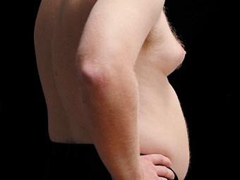У XXI столітті у чоловіків почали зростати груди.