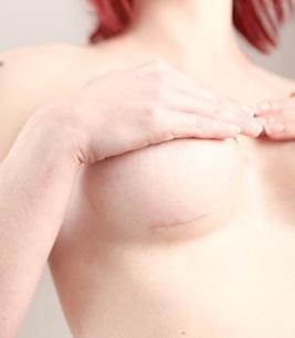 Операция по увеличении груди в белоруссии
