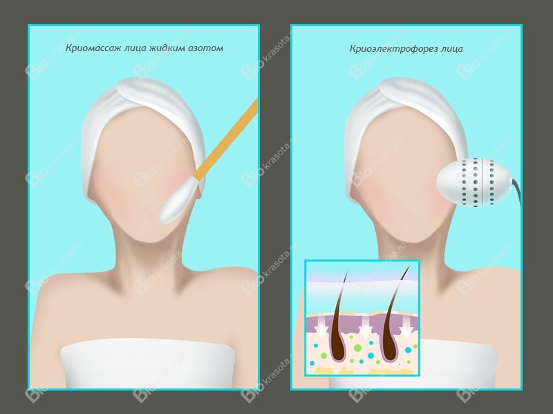 Кризотерапия фото