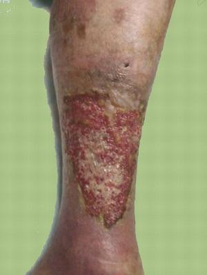 Если у вас вдруг начали болеть вены в области ног, то знайте, это первые признаки появления