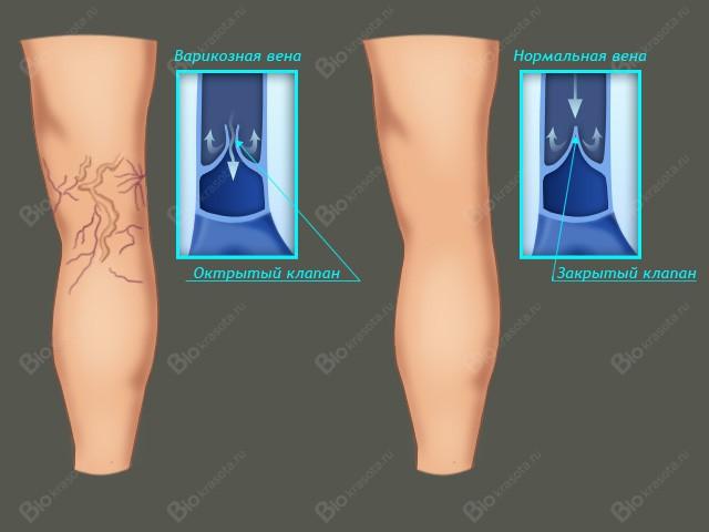 Варикозное расширение вен на ногах, лечение