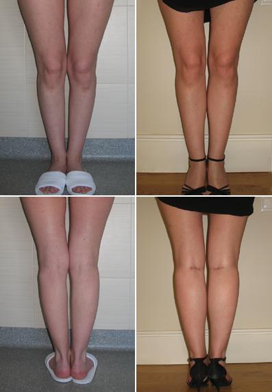 пересадка волос фото до и после женщины